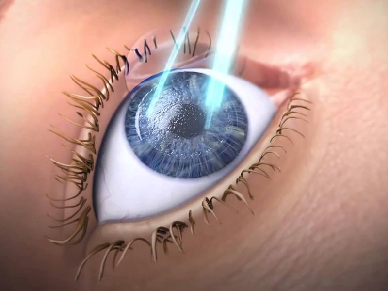 Especialidades - Excimer Laser