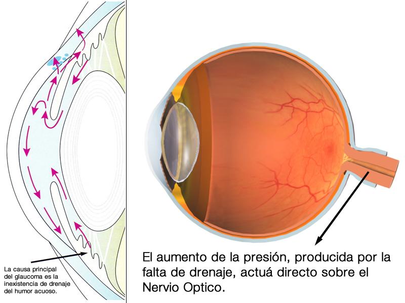 Glaucoma - Conoce más
