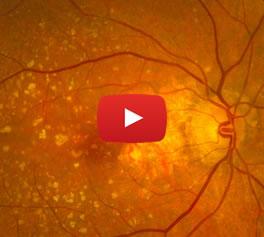 Maculopatía - Conoce más - Video