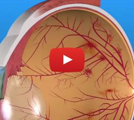 Retinopatía Diabética - Conoce más - Video